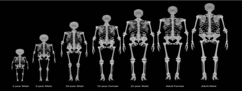 testosterone-et-densite-osseuse
