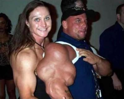 bras-d-homme-apres-consommation-de-steroides